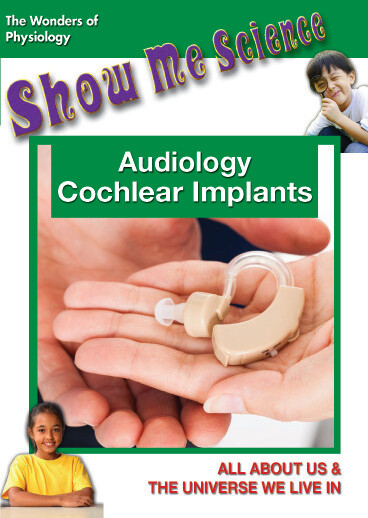 K4657 - Audiology Cochlear Implants